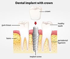 Dental Implants 77379