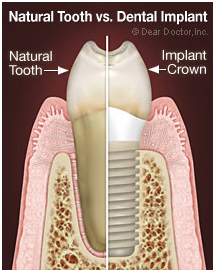 Implant Dentist Spring TX