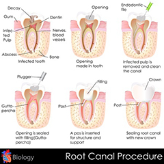 Spring TX Root Canal