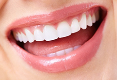 Dental Veneers Spring, Cosmetic Dentist TX