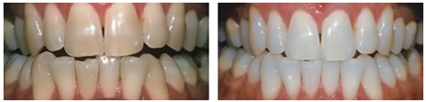 Teeth Whitening 77379, TX Zoom Whitening